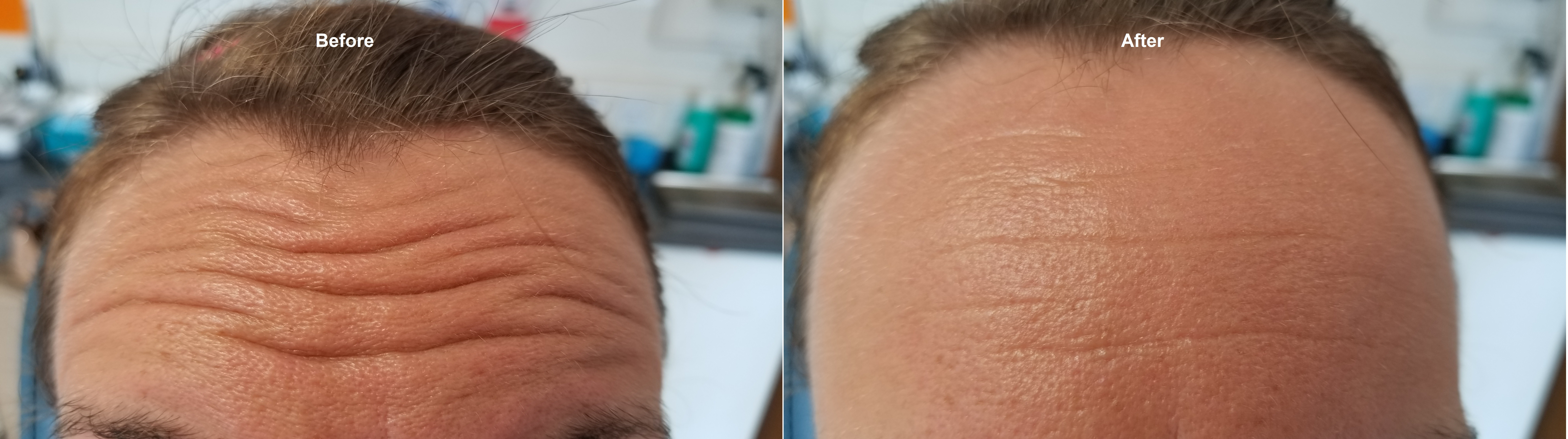 Wrinkle smoothing procedure - Before & After